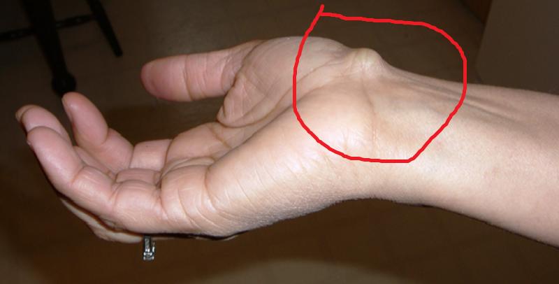 Мягкая шишка на кисти руки что это