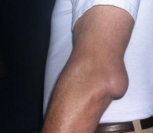 Шишка на локтевом суставе что это состав от суставов с йодом