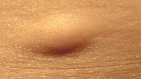 Уплотнение мягких тканей бедра 6