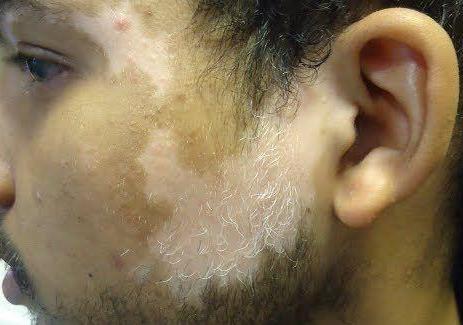 Витилиго - частая причина белых пятен на теле
