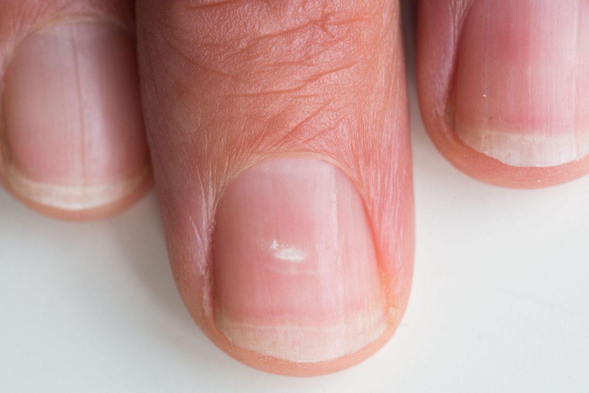 Белое пятно на ногте может означать проблемы в работе организма