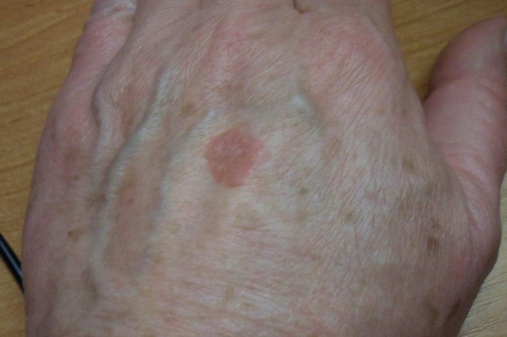 Красное пятно на коже круглое