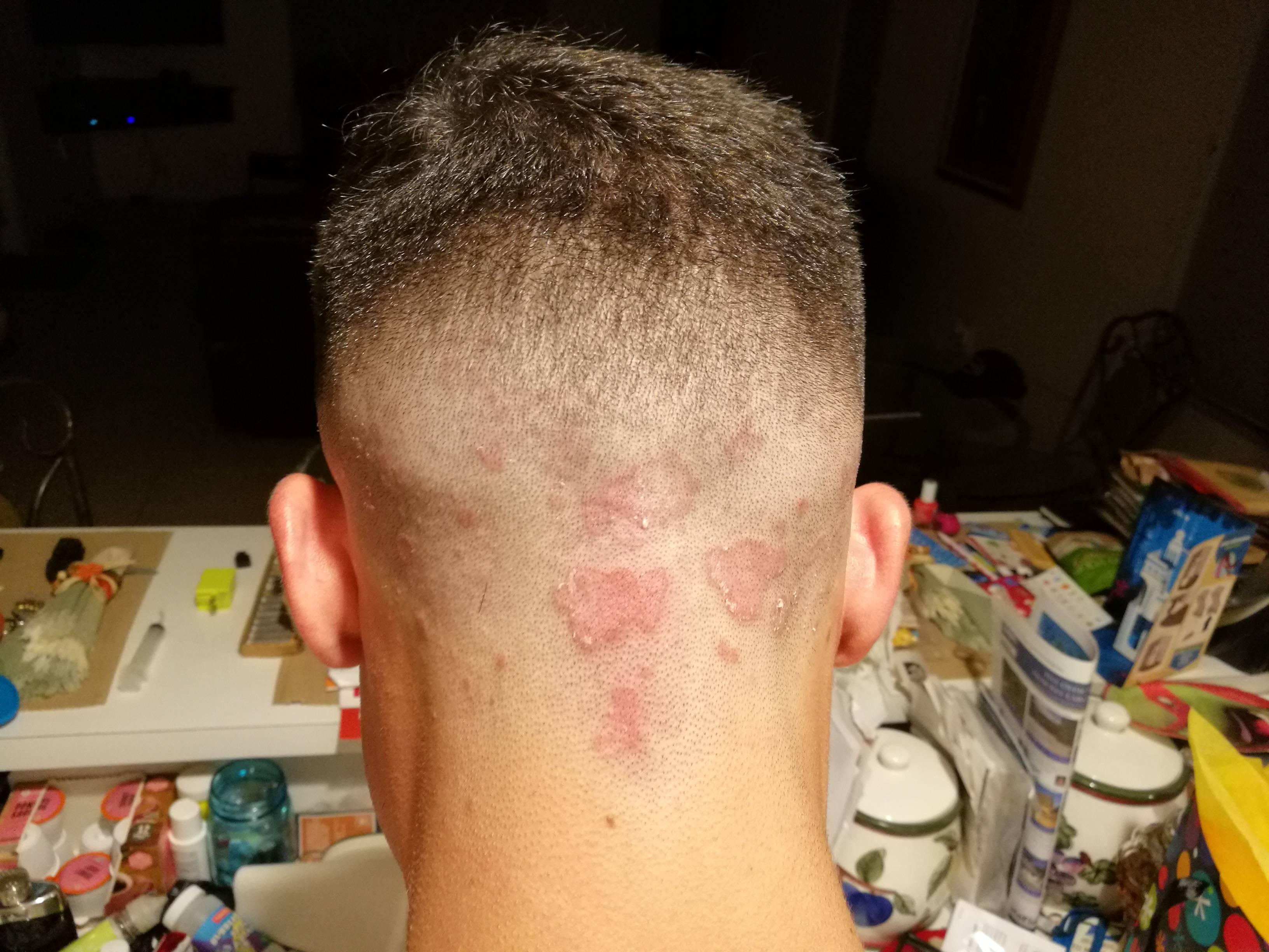 Красные пятна на голове могут означать наличие лишая
