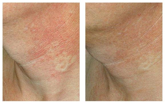 Почему появляются пигментные пятна на шее