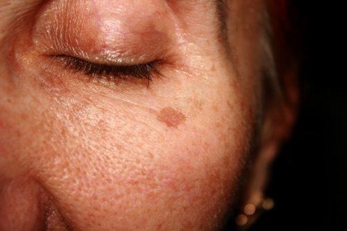 Пигментное пятно под глазом может свидетельствовать о проблемах с печенью