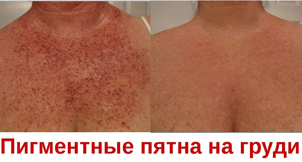 Пигментные пятна на груди у женщин