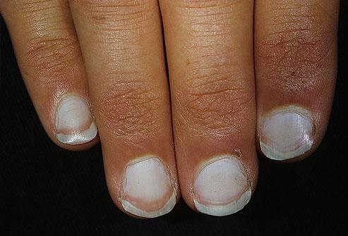 Белые пятна на ногтях рук - что это означает