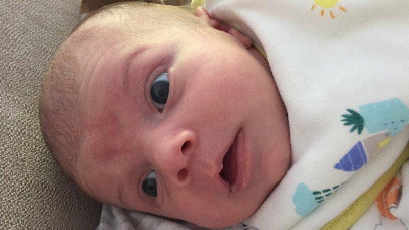 Красное пятно на лбу у новорожденного, стоит ли переживать?