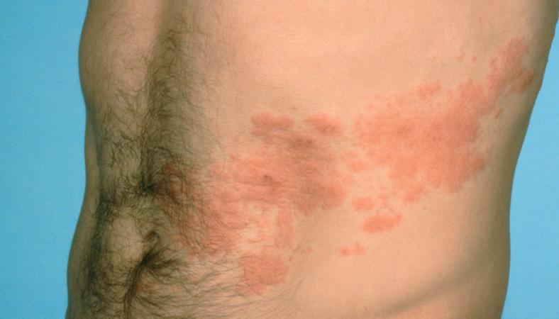 Лишай вызывается грибковыми микроорганизмами