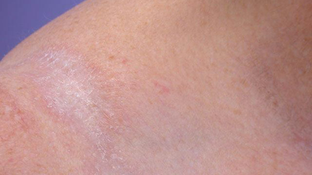 Лишай на руке у человека: 6 фото, признаки, лечение, причины