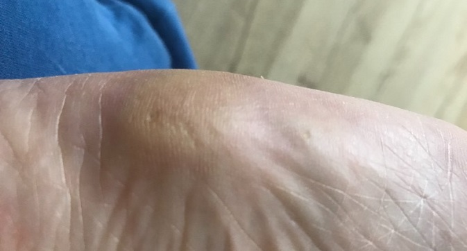 Шишка на пальце ноги снизу