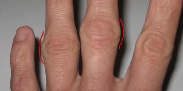 Шишка на пальцах рук - симптом артроза