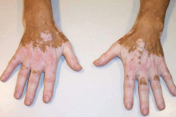 Почему на коже появляются белые пятна