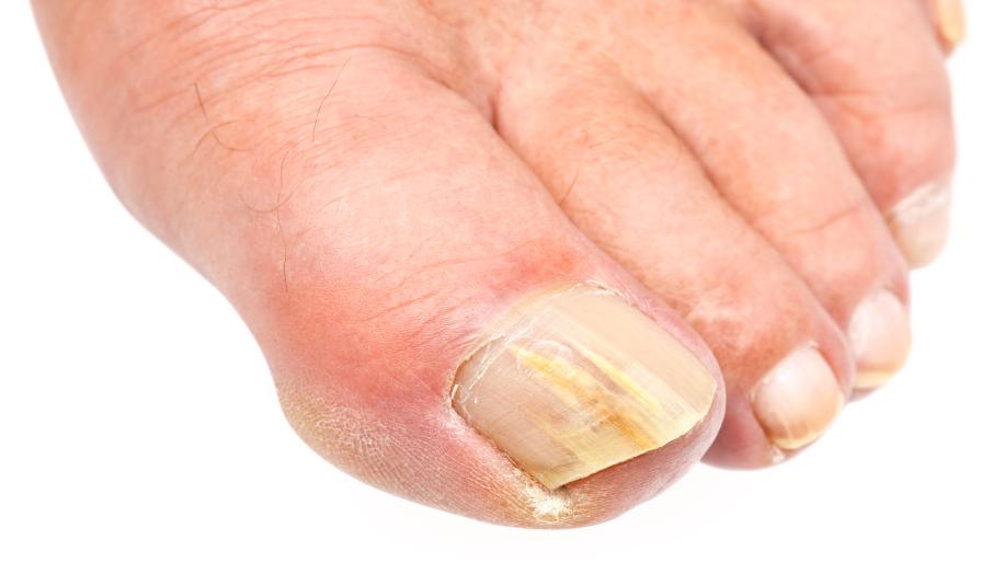 Причины желтых ногтей на ногах