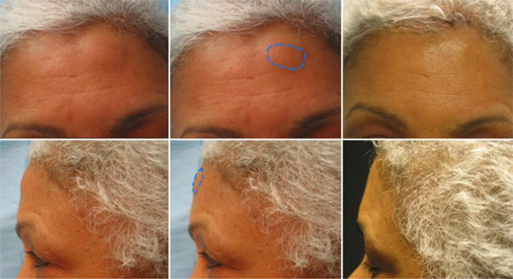 Шишка на голове от удара лечение