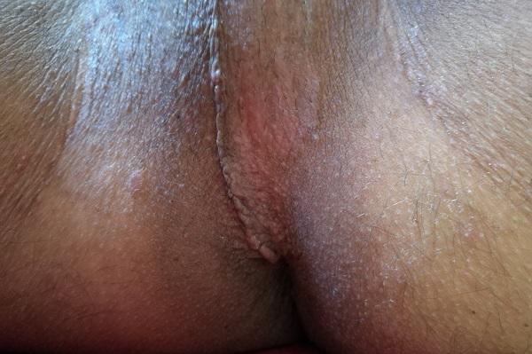 Эритразма фото у мужчин лечение 7