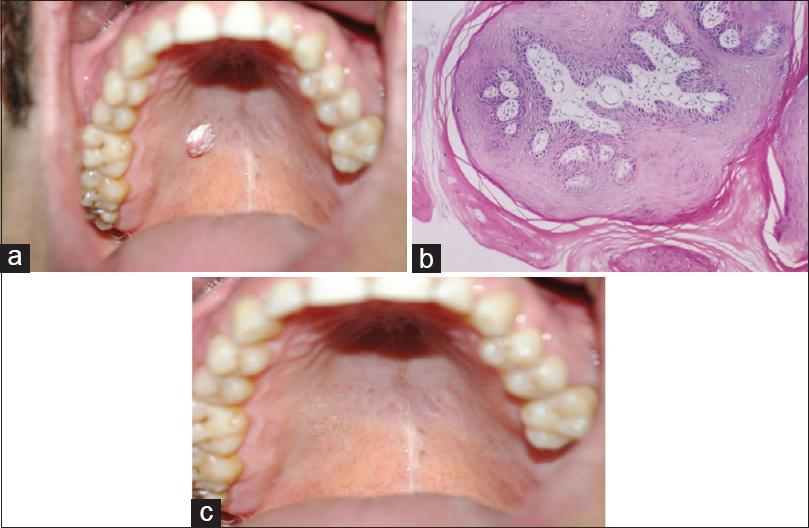 Папилломы во рту и на слизистой рта