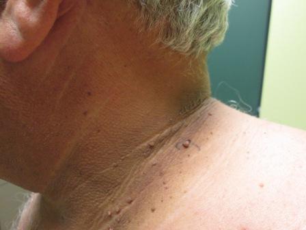Удалить папилломы и бородавки можно при помощи полыни