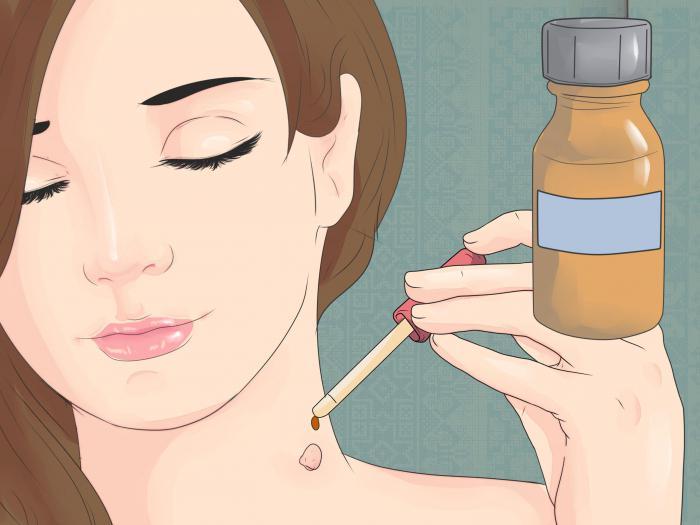 Папилломы на шее - почему появляются и как убрать