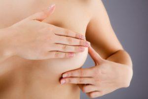 Папилломы под грудью - опасно ли это, и как их убрать