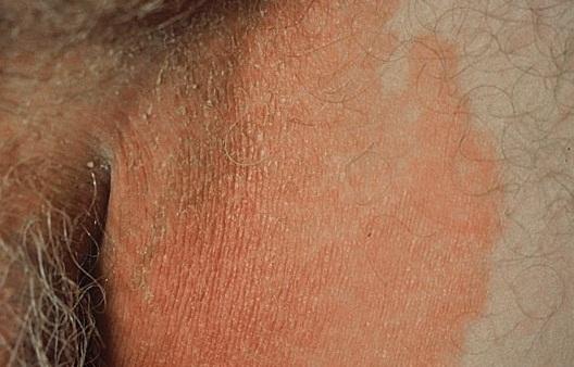 Эритразма паха вызывается грибками
