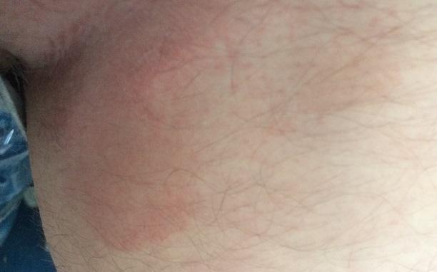 Эритразма фото у мужчин лечение 47