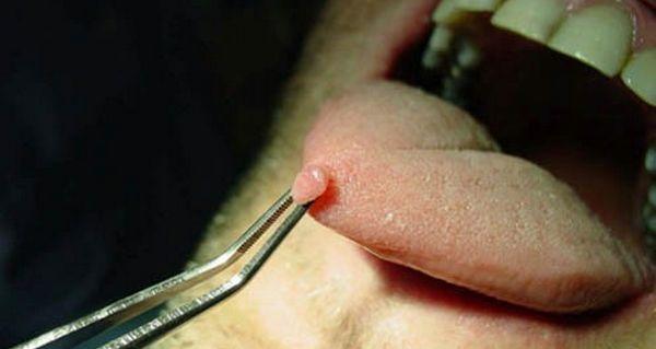 Папиллому на языке стоит удалить хирургическим путем