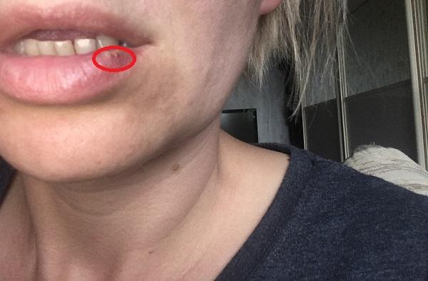 Папиллома на губе фото
