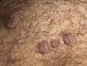 Папилломы на мошонке можно удалить жидким азотом