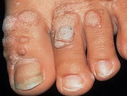 Папиллома на ноге - как выглядит и как убрать