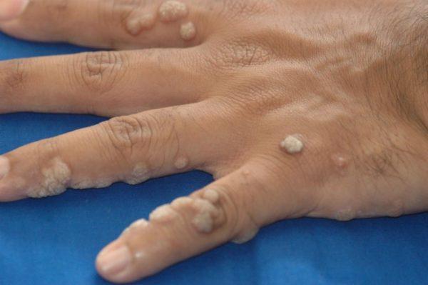 При появлении папиллом стоит обратиться к дерматологу