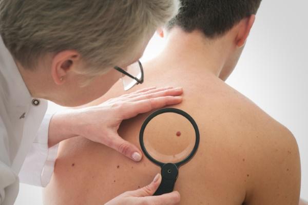 Папилломы на спине