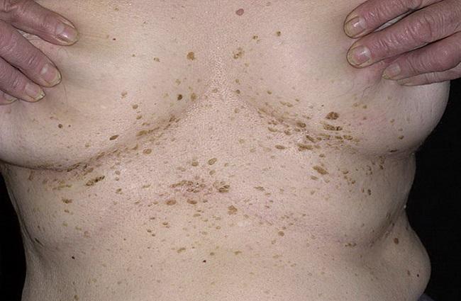 Папилломы под грудными железами