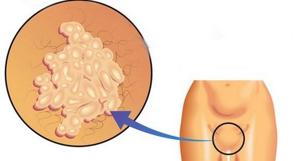 Папилломы появляются из-за активации ВПЧ
