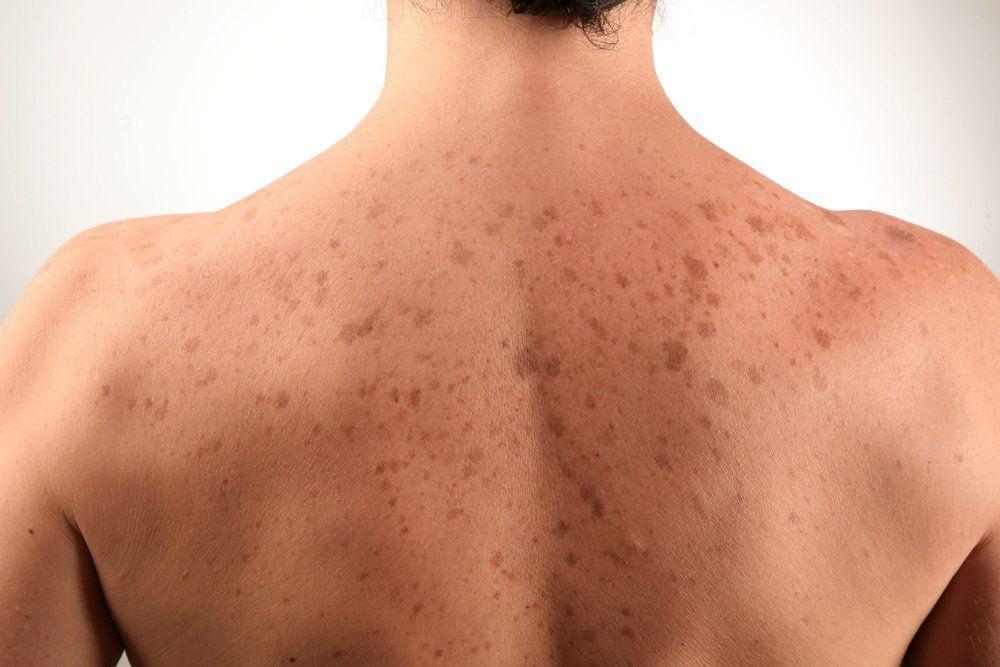 Пятна на коже коричневого цвета - все причины появления и их лечение