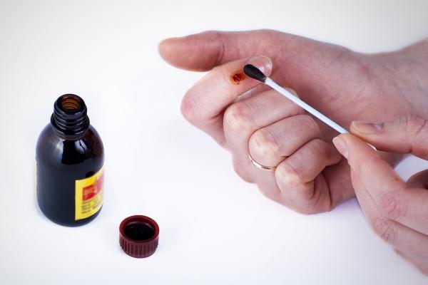 Папиллома представляет собой нарост на коже или слизистых оболочках