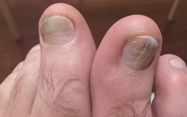 Потемнели ногти на больших пальцах ног - что это такое и как лечить