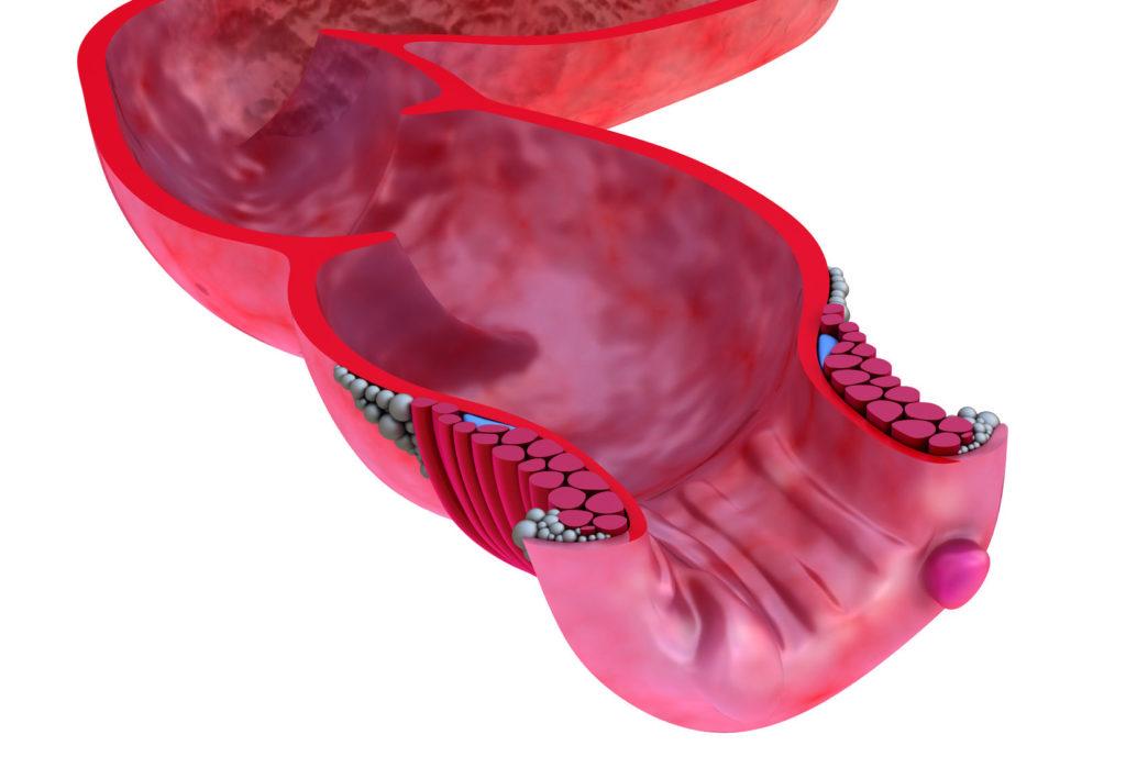 Анальные трещины могут появиться из-за хронического запора