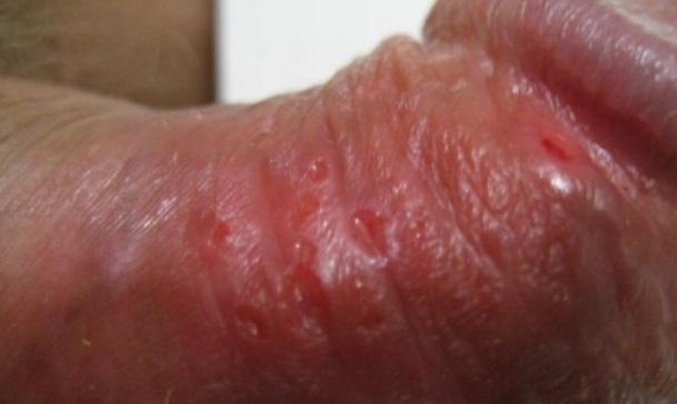 Трещины на на коже полового члена