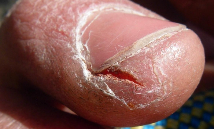Трещины возле ногтей необходимо лечить мазями