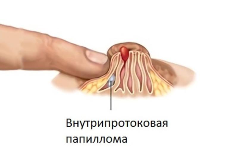 Внутрипротоковая папиллома может появиться по разным причинам