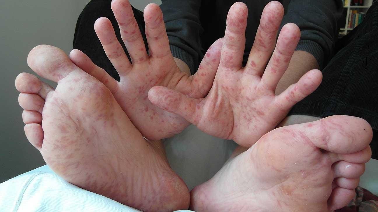 сыпь при скарлатине на ладонях и ступнях