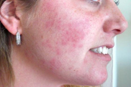 Аллергическая сыпь может сопровождаться зудом