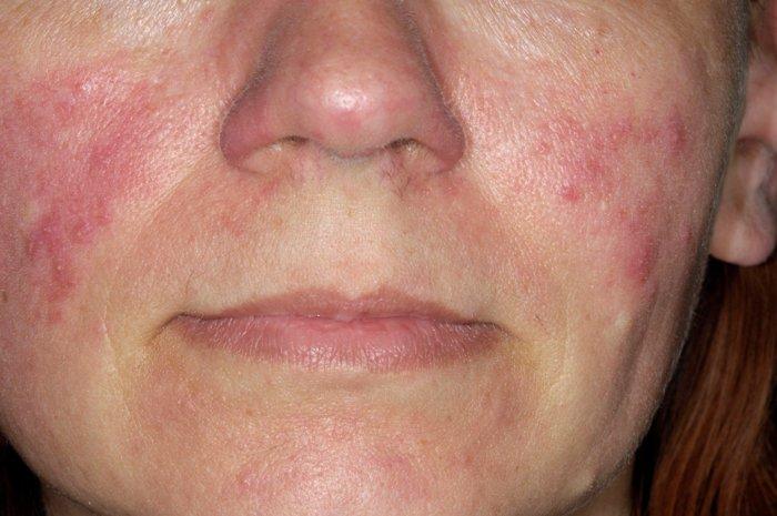 Розацеа - распространенное дерматологическое заболевание