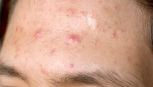 Папуло-пустулезная форма акне - симптомы, причины и как лечить