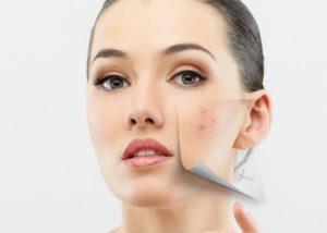 Подкожные прыщи на лице - причины и как убрать