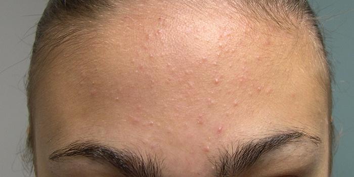Водянистые прыщи на лице - почему появляются и как быстро убрать