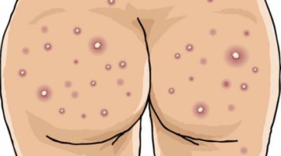 Прыщи на анусе могут появиться в результате воспалительного процесса