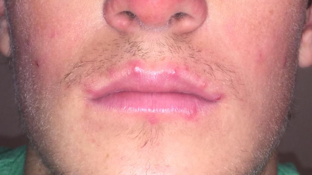 Прыщи на губах вызываются вирусом герпеса