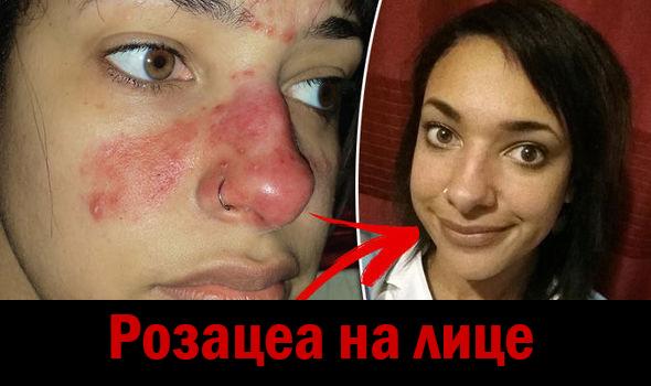 Розацеа на лице, фото до и после